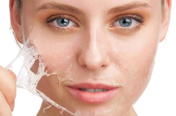 cara-mengatasi-kulit-kering-dan-bersisik-pada-wajah-secara-alami