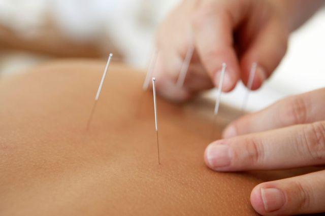 Akupunktur-gegen-Hitzewallungen