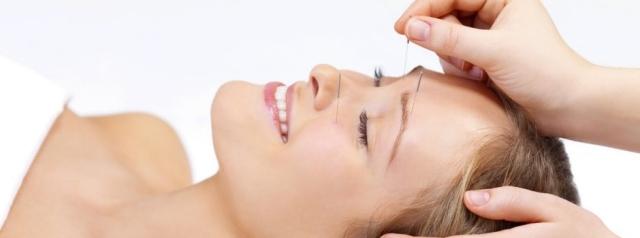 CosmeticAcupuncturePic12