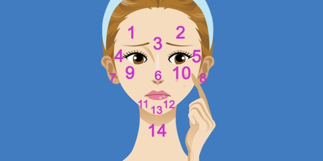 21412-posisi-jerawat-di-wajah-jadi-sinyal-masalah-kesehatan-053407