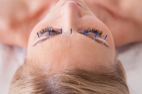 antiaging-akupunktur