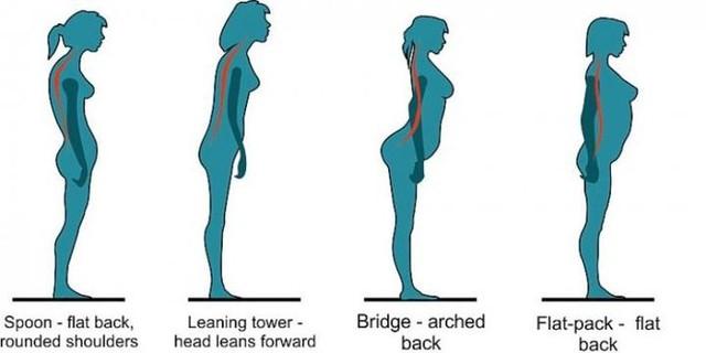 foto-tipe-postur-tubuh-wanita-yang-rentan-alami-nyeri-punggung