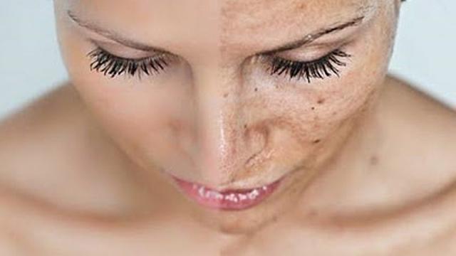 sun-damage-skin
