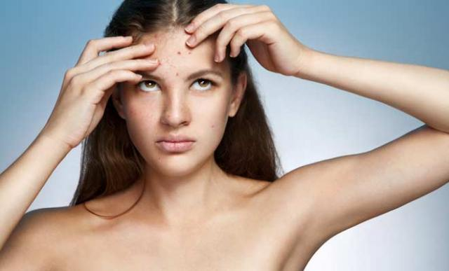 sunscreen-causes-pimple-and-acne