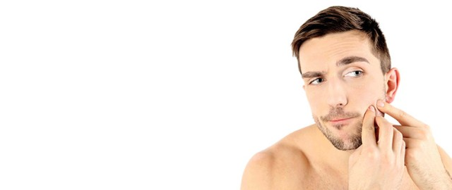 blackheads-acne-salicylic acid-Top-Reasons-Why-Men-Break-Out-780x330