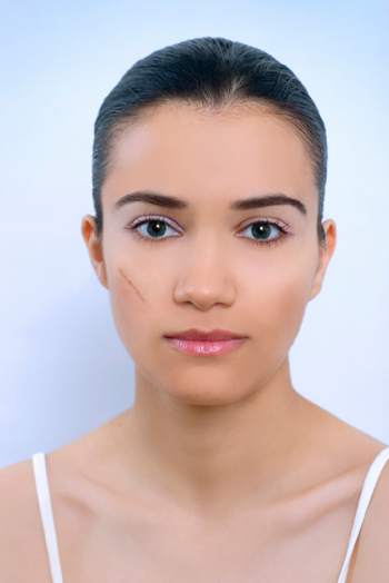 woman-with-scar-on-cheek_oa859s
