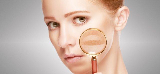 remove-skin-pigmentation